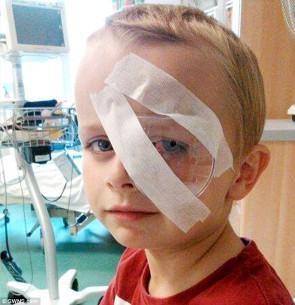 Kyle, un Anglais de sept ans s'est pris un élastique Rainbow Loom dans l'oeil et en a perdu l'usage